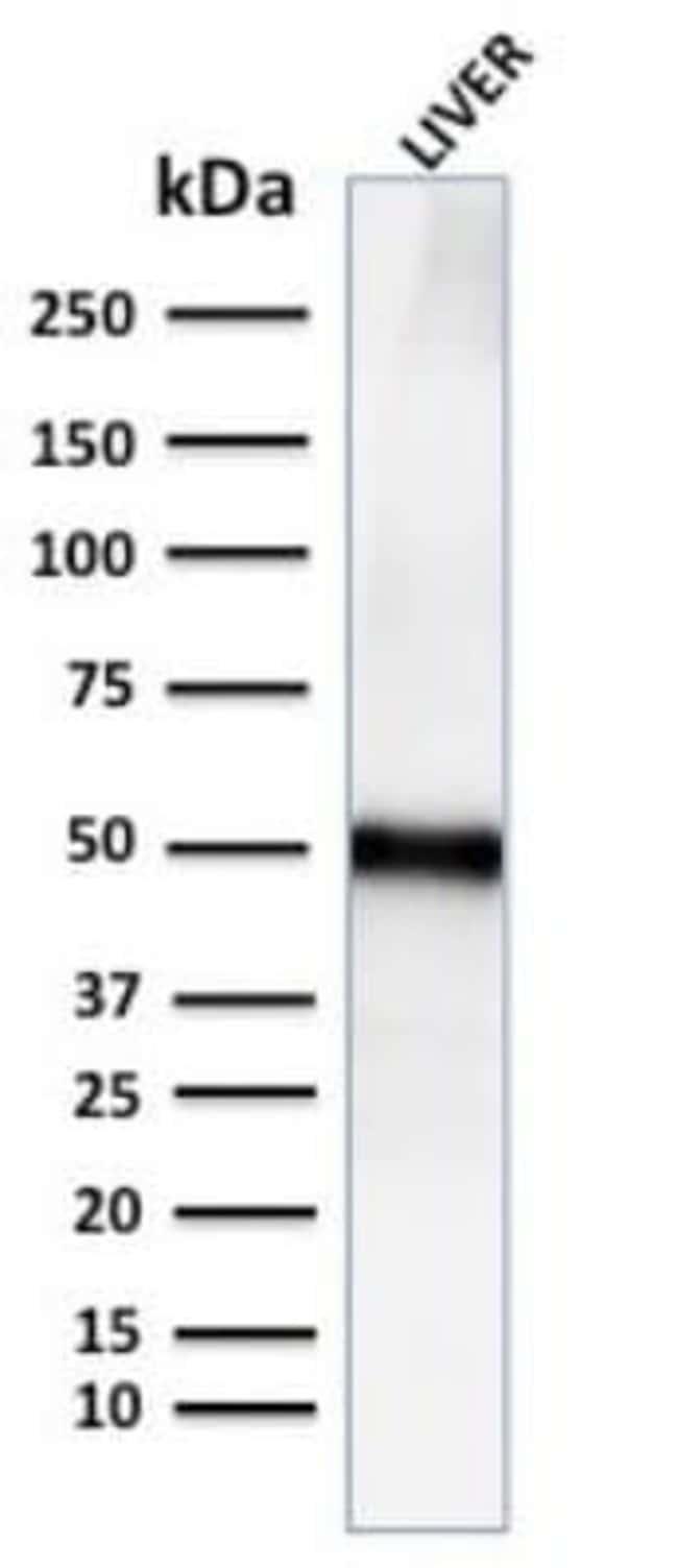 Perilipin-2/ADFP Rabbit anti-Human, Clone: ADFP/2755R, Novus Biologicals:Antibodies:Primary