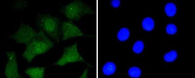 Prionprotein Rabbit anti-Human, Clone: SC57-05, Novus Biologicals 100µL