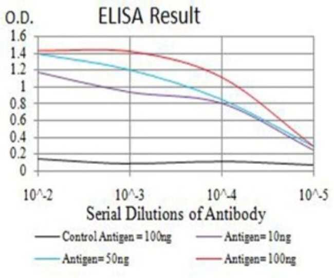 RIPK4 Mouse anti-Human, Clone: 1F7D9, Novus Biologicals 0.1 ml; Unconjugated