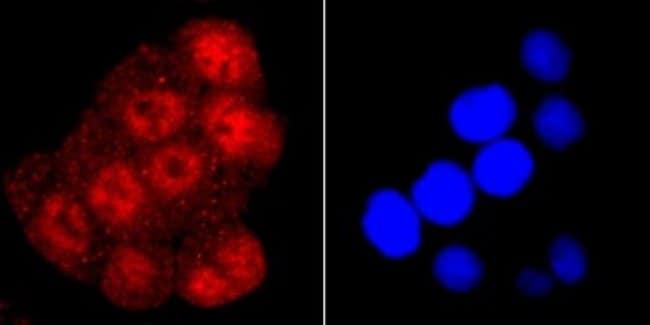 RNAPolymeraseII/POLR2A Rabbit anti-Human, Clone: JM51-10, Novus Biologicals