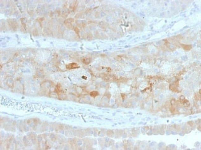ROR2 Mouse anti-Human, Clone: ROR2/1912, Novus Biologicals:Antibodies:Primary