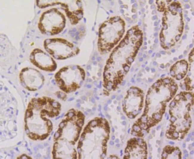 RPS3 Rabbit anti-Human, Clone: SA46-08, Novus Biologicals 100µL