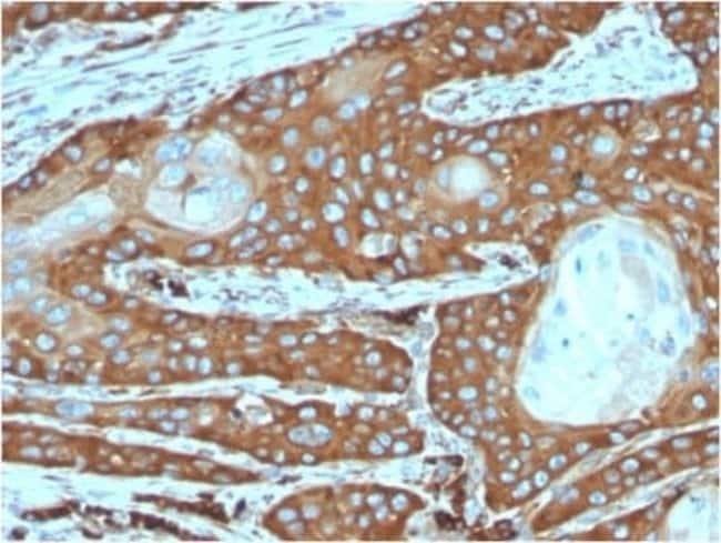 RPSA Mouse anti-Human, Clone: rRPSA/6333, Novus Biologicals:Antibodies:Primary