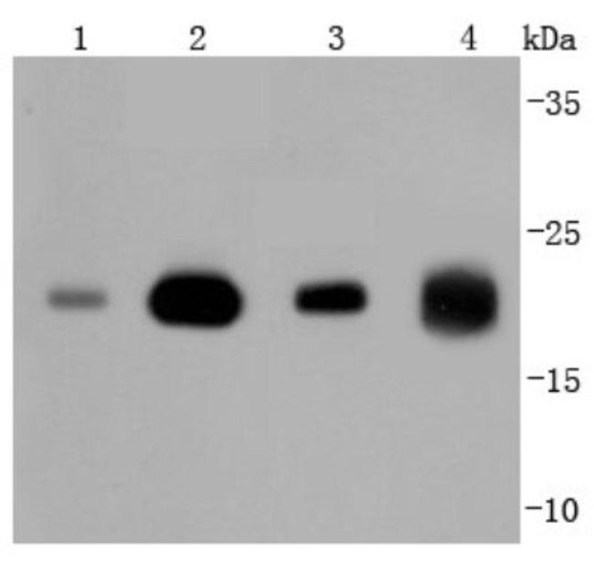 Ras Rabbit anti-Human, Clone: JF10-11, Novus Biologicals 100µL