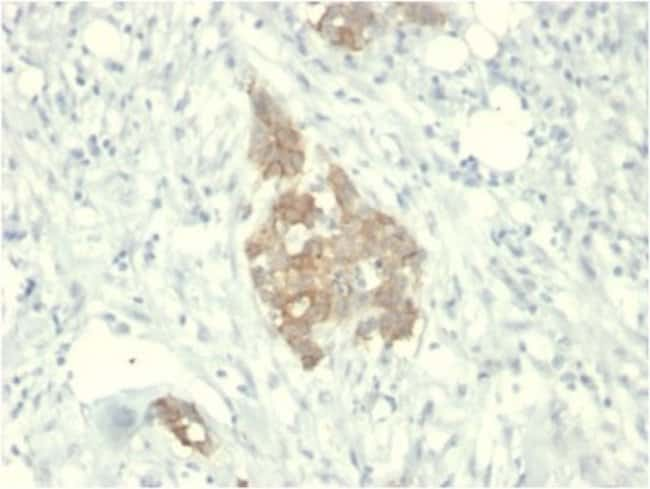 Ret, Mouse anti-Human, Clone: RET/2795, Novus Biologicals:Antibodies:Primary
