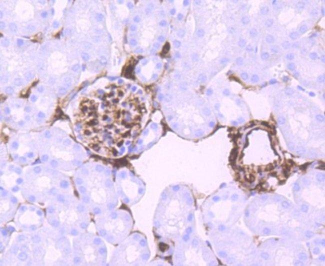 S100A6 Rabbit anti-Human, Clone: JF0976, Novus Biologicals 100µL