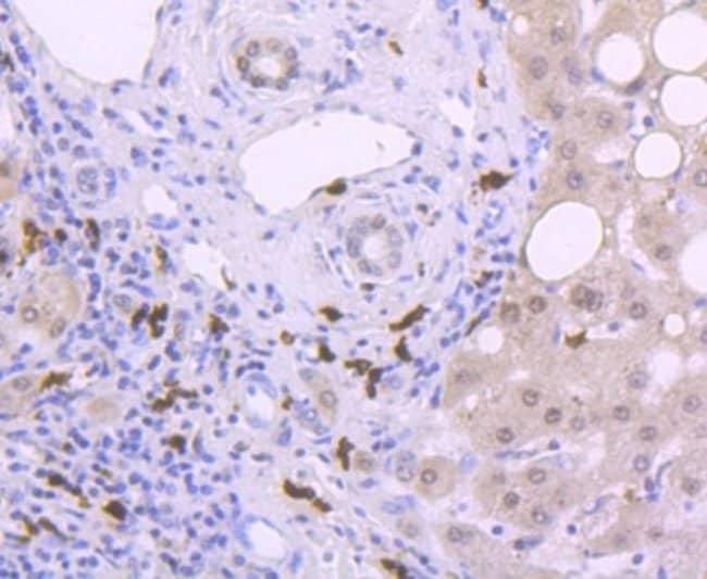 S100A9 Rabbit anti-Human, Clone: JF096-8, Novus Biologicals 100μL:Antibodies