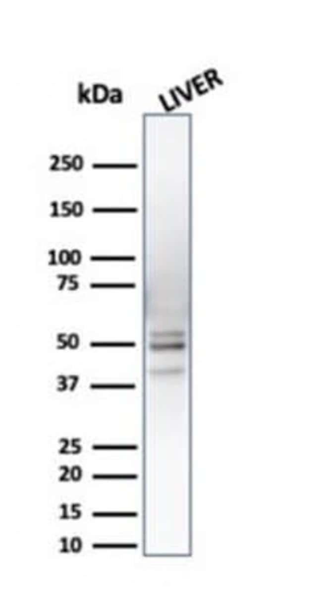 S5a/Angiocidin Mouse anti-Human, Clone: CPTC-PSMD4-3, Novus Biologicals:Antibodies:Primary