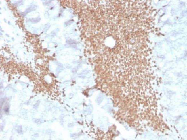 SATB2 Rabbit anti-Human, Clone: SATB2/4374R, Novus Biologicals:Antibodies:Primary