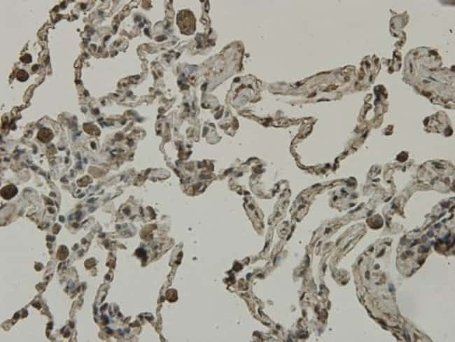 SCAI Mouse anti-Human, Clone: 7-A4, Novus Biologicals 100µL