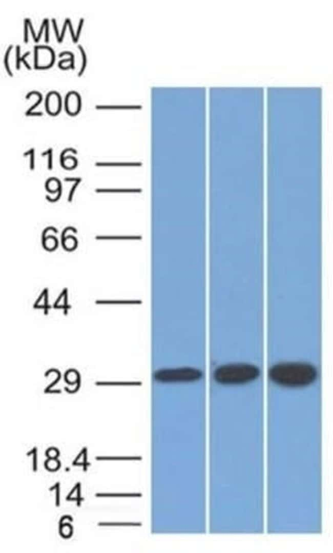 SDHB Mouse anti-Human, Clone: SDHB/2126, Novus Biologicals:Antibodies:Primary