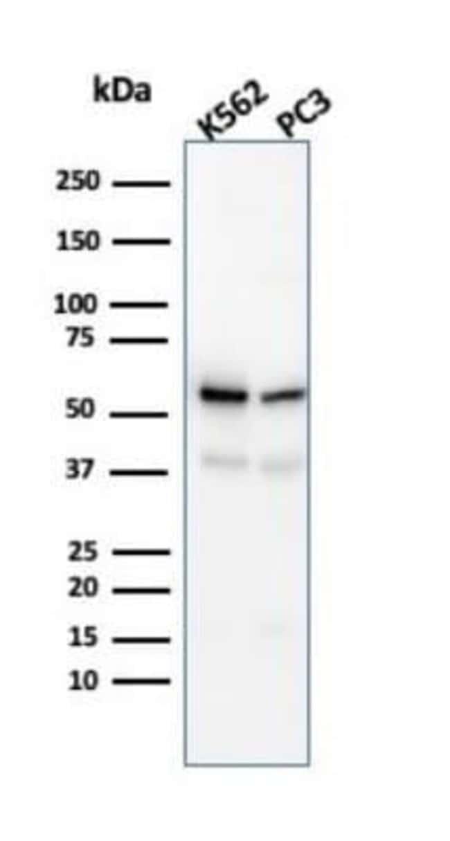 SERBP1 Mouse anti-Human, Clone: SERBP1/3491, Novus Biologicals:Antibodies:Primary