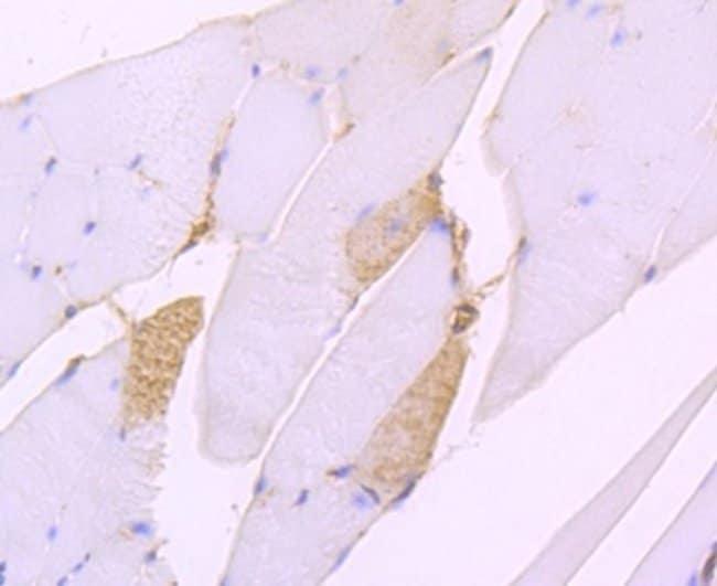 SERCA2ATPase Rabbit anti-Human, Clone: JM10-20, Novus Biologicals 100μL:Antibodies