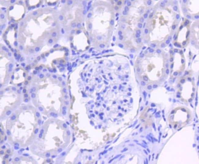 SHP-2/PTPN11 Rabbit anti-Human, Mouse, Clone: SN07-32, Novus Biologicals