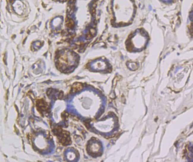 SNX1 Rabbit anti-Human, Mouse, Rat, Clone: JG40-06, Novus Biologicals 100