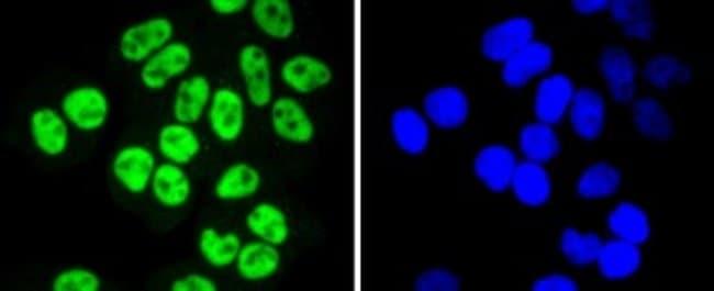 SP1 Rabbit anti-Human, Clone: JF0950, Novus Biologicals 100µL