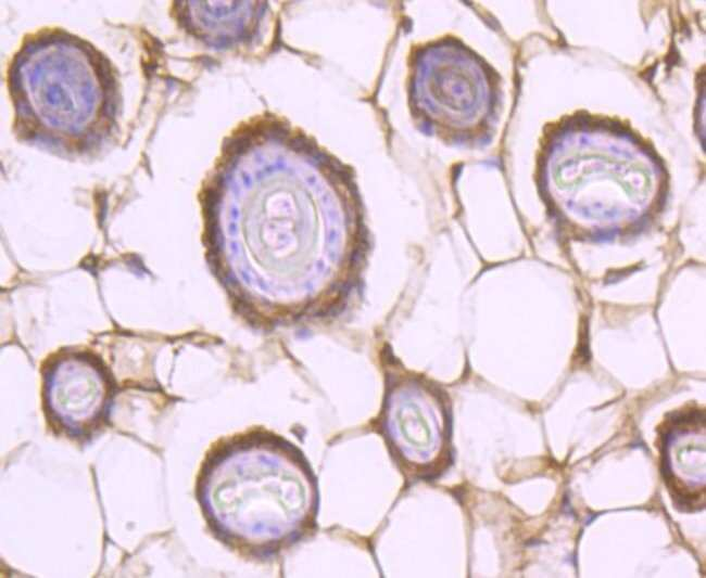 STAT2 Rabbit anti-Human, Clone: JF0884, Novus Biologicals 100μL:Antibodies