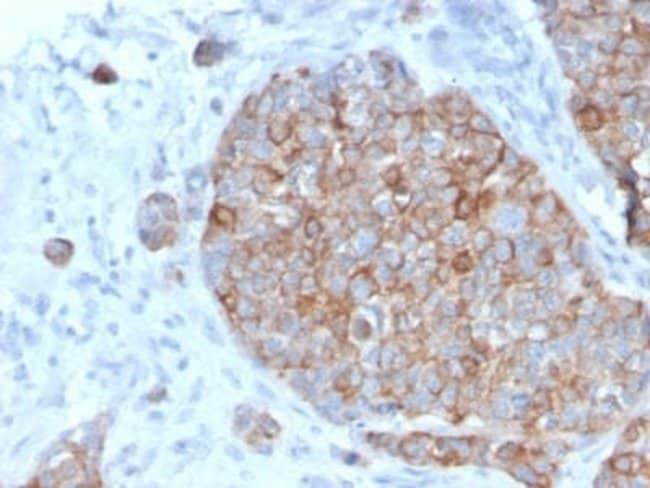 STAT2 Mouse anti-Human, Clone: STAT2/2650, Novus Biologicals:Antibodies:Primary