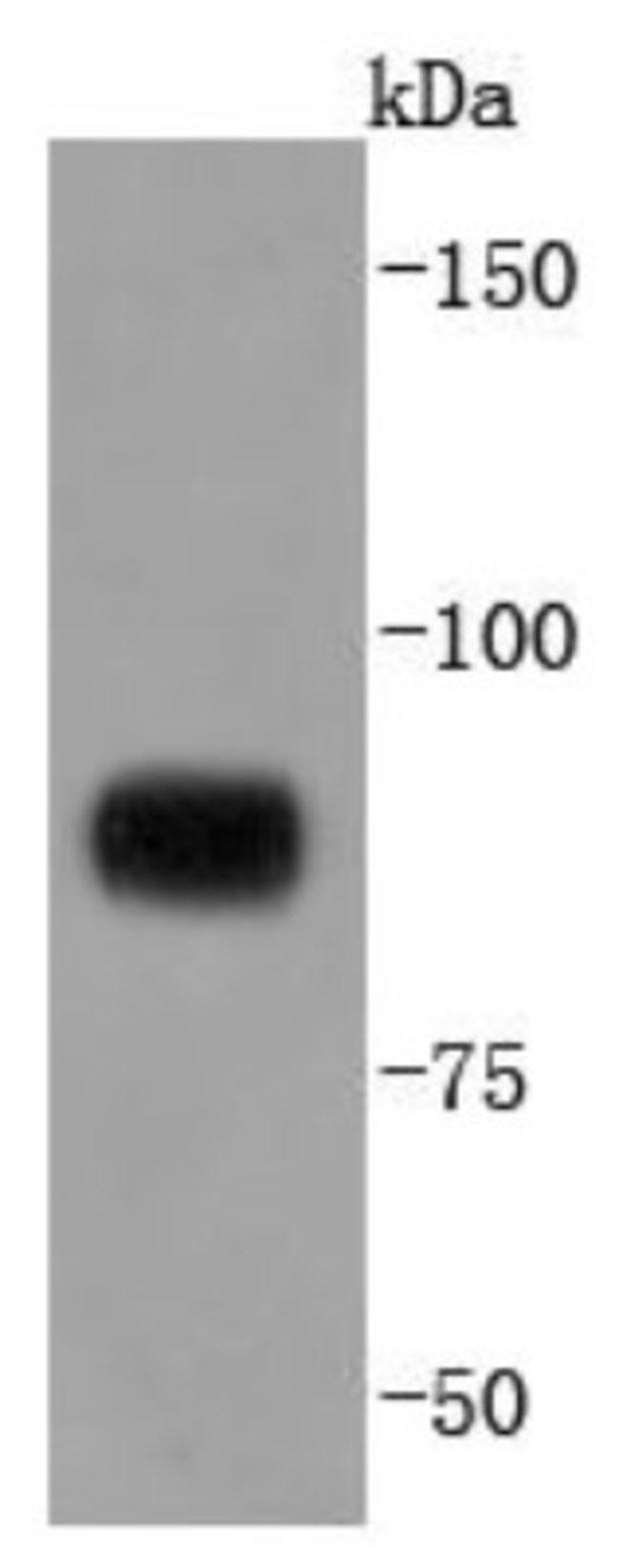 STAT4 Rabbit anti-Human, Clone: JJ08-85, Novus Biologicals 100µL