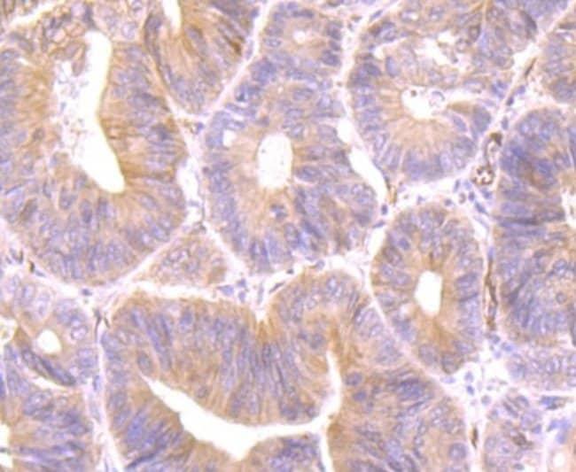 PTTG1 Rabbit anti-Human, Clone: JB37-37, Novus Biologicals 100 µl;