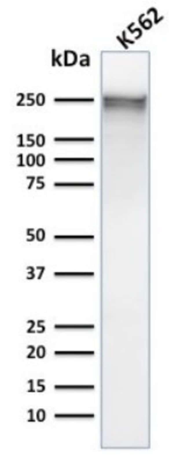 Spectrin alpha 1, Mouse anti-Human, Clone: SPTA1/1832, Novus Biologicals:Antibodies:Primary