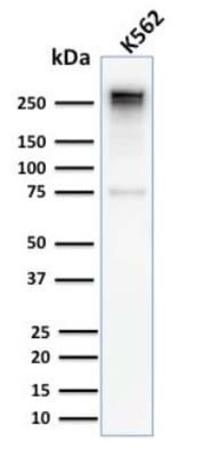 Spectrin alpha 1 Rabbit anti-Human, Clone: SPTA1/2939R, Novus Biologicals:Antibodies:Primary