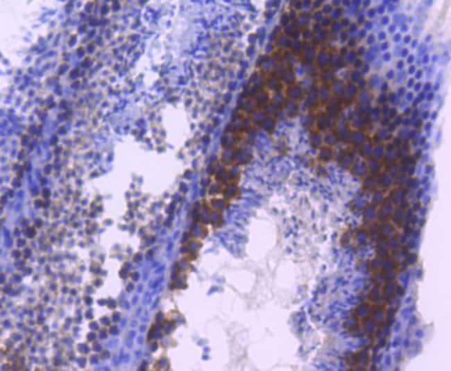 TACC3 Rabbit anti-Human, Clone: SN73-05, Novus Biologicals 100µL