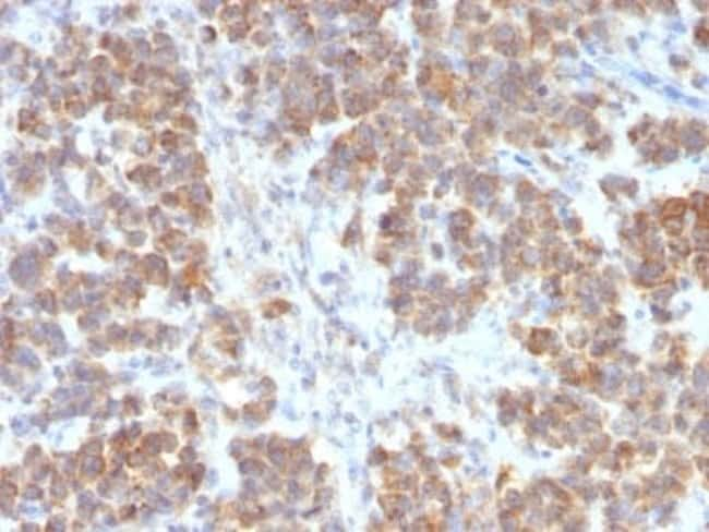 TL1A/TNFSF15 Rabbit anti-Human, Clone: VEGI/2052R, Novus Biologicals:Antibodies:Primary