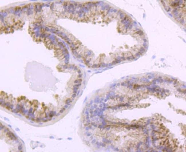 TLR5 Rabbit anti-Human, Clone: JM10-88, Novus Biologicals 100μL:Antibodies