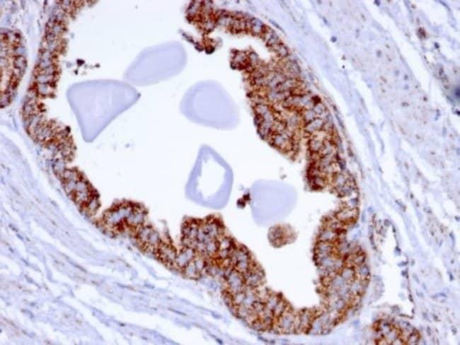 TMEPAI, Mouse anti-Human, Clone: PMEPA1/2696, Novus Biologicals:Antibodies:Primary