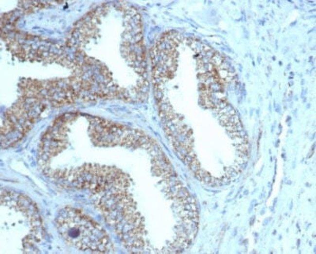 TMEPAI Mouse anti-Human, Clone: rPMEPA1/6422, Novus Biologicals:Antibodies:Primary