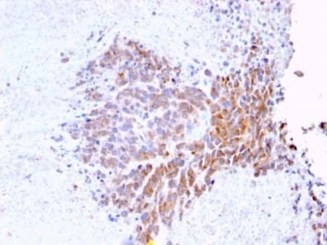 TOP1MT Mouse anti-Human, Clone: TOP1MT/568, Novus Biologicals:Antibodies:Primary