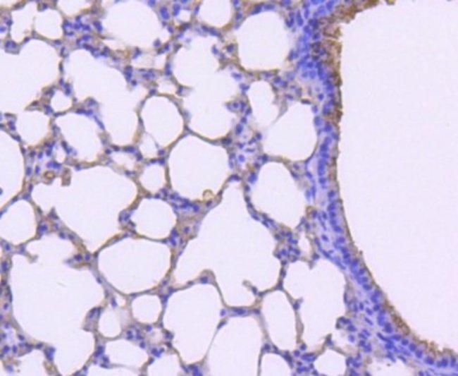 TPSAB1 Rabbit anti-Human, Clone: SC68-07, Novus Biologicals 100µL
