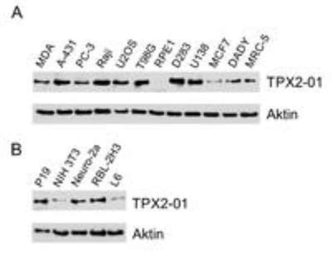 TPX2 Mouse anti-Human, Clone: TPX2-01, Novus Biologicals 0.1mg