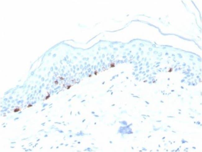 TYRP1, Mouse anti-Human, Clone: TYRP1/3280, Novus Biologicals:Antibodies:Primary