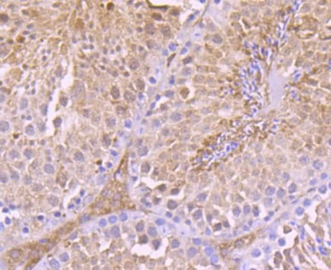 ThioredoxinReductase1/TRXR1 Rabbit anti-Human, Clone: JA11-32, Novus Biologicals