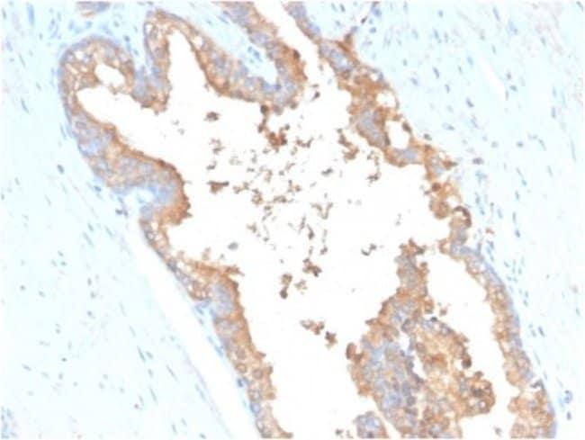 Transferrin, Mouse anti-Human, Clone: TF/3001, Novus Biologicals 20 ug;