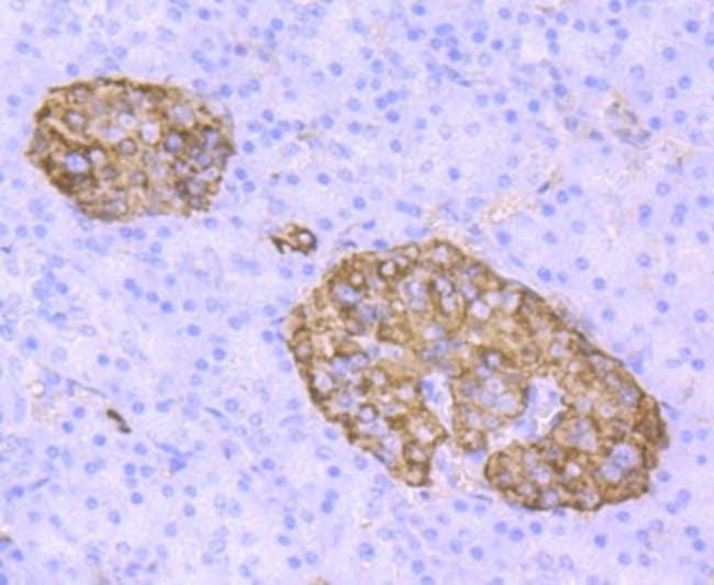 Transthyretin/Prealbumin Rabbit anti-Human, Clone: JM11-43, Novus Biologicals