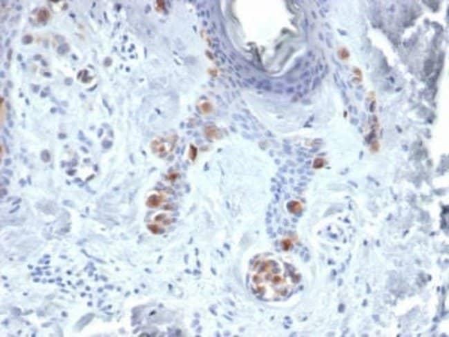Tyrosinase Mouse anti-Human, Clone: TYR/3829, Novus Biologicals:Antibodies:Primary