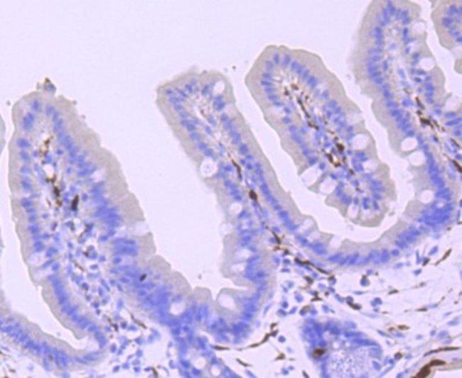 UCH-L1/PGP9.5 Rabbit anti-Human, Mouse, Rat, Clone: JM10-59, Novus Biologicals