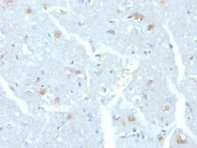 UbcH10/UBE2C Mouse anti-Human, Clone: CPTC-UBE2C-1, Novus Biologicals:Antibodies:Primary