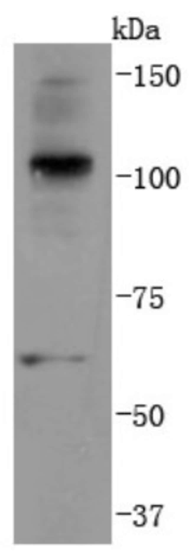UbiquitinB Rabbit anti-Human, Clone: JM09-67, Novus Biologicals 100μL:Antibodies