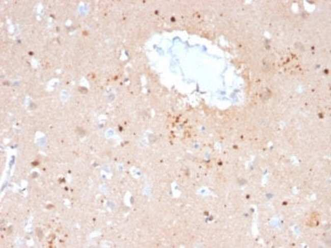 Ubiquitin B Mouse anti-Human, Clone: UBB/2122, Novus Biologicals:Antibodies:Primary