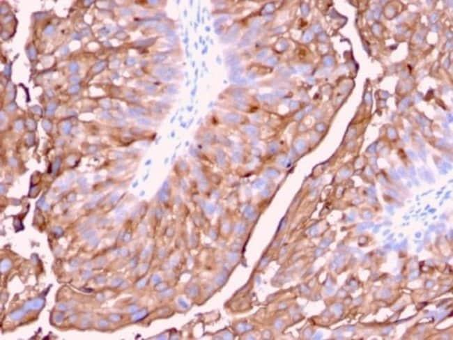 Uroplakin Ia, Mouse anti-Human, Clone: UPK1A/2921, Novus Biologicals:Antibodies:Primary
