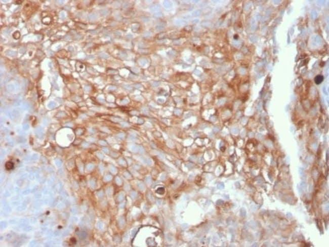Uroplakin Ia, Mouse anti-Human, Clone: UPK1A/2925, Novus Biologicals 100