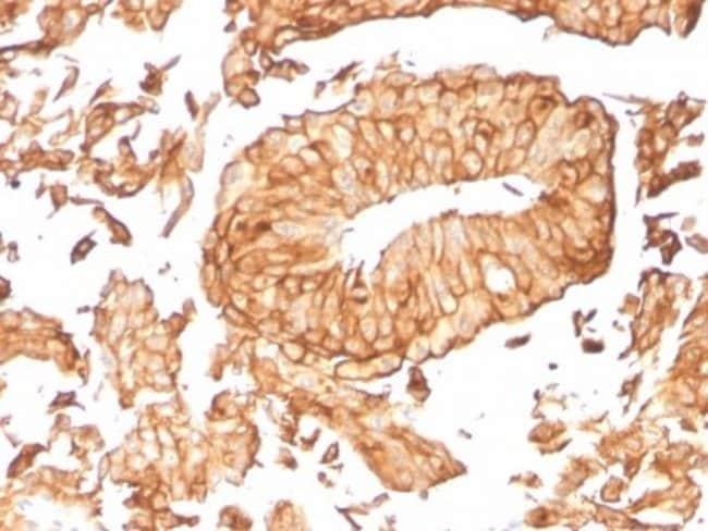 Uroplakin Ib, Mouse anti-Human, Clone: UPK1B/3081, Novus Biologicals:Antibodies:Primary
