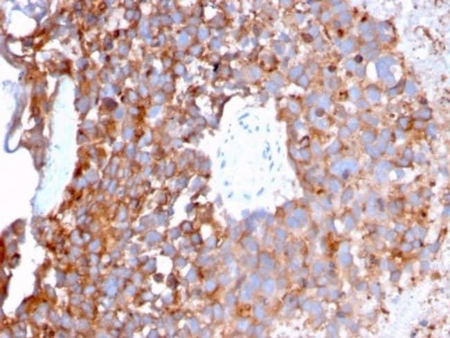 Uroplakin Ib, Mouse anti-Human, Clone: UPK1B/3273, Novus Biologicals:Antibodies:Primary