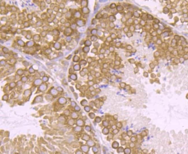 VPS26A Rabbit anti-Human, Mouse, Rat, Clone: JB93-41, Novus Biologicals