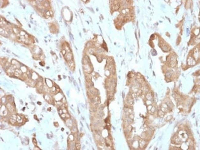Villin 1 Rabbit anti-Human, Clone: VIL1/2310R, Novus Biologicals:Antibodies:Primary