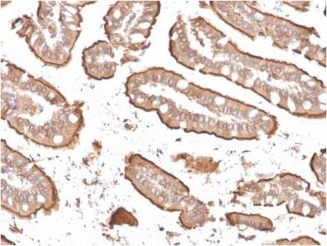 Villin 1, Mouse anti-Human, Clone: rVIL1/1325, Novus Biologicals:Antibodies:Primary